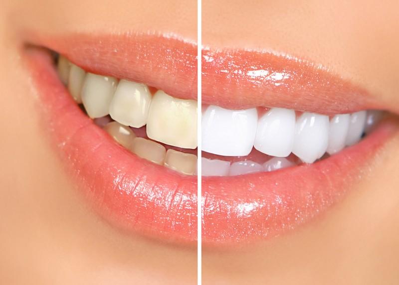 Teeth Whitening  Columbus, OH